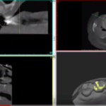 Guided Implant Surgery: Planning a Molar Case