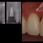 Implants in the Esthetic Zone: Reviewing a Challenging Case