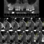 Root tip in the implant's path: what would you do?