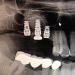 Implant failure possibility?