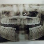 Prosthetic options for resorbed anterior mandible?