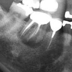 Treatment of Large Bone Defect from Root  Fracture