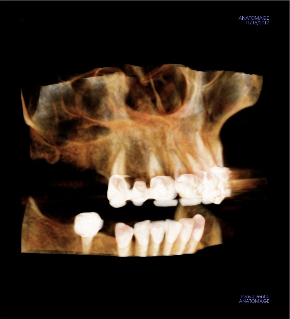 Thoughts on Challenge due to Significant Concavity in Implant Site?