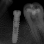 Crestal bone loss after immediate implant placement: recommendations?