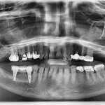 Implant-Supported Bridge with Bone Loss: How would you treat this?