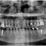 Unknown implant: internal hex?