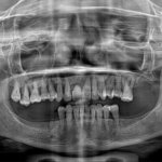 Periodontitis: Immediate implant or wait?