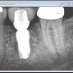 Dark Area on Mesial of Implant: Cause for Concern?