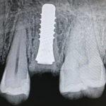 Zeramex Zirconia Impant Case on Tooth 13