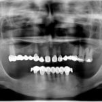 Deep decay in canine and implant placement: opinions?