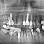 GBR in Labial Plate Bone Fracture