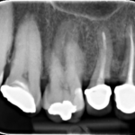 Foreign Object in Implant Site: Best Option?