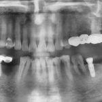 Implant with Graft after Infection