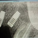 Possible palatal perforation with bicon implant: recommendations?