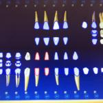 Mandibular dental implant with no posteriors: Prognosis?