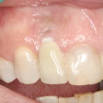 Is Soft Tissue Important around an Implant?