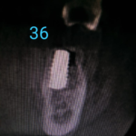 Implants Placed too Lingually: Prognosis?