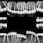 Identify Implants and Explain Prosthetics?