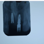 Abutment not engaging the fixture: options?
