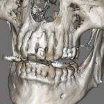 Immediate vs Delayed Implant Placement?