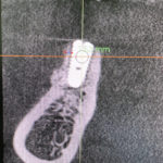 Resorbing graft over implant after 4 months: thoughts?
