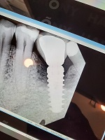Bone Loss around Dental Implant: Options?