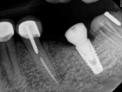 Implant placed too far distally from #20: Solutions?